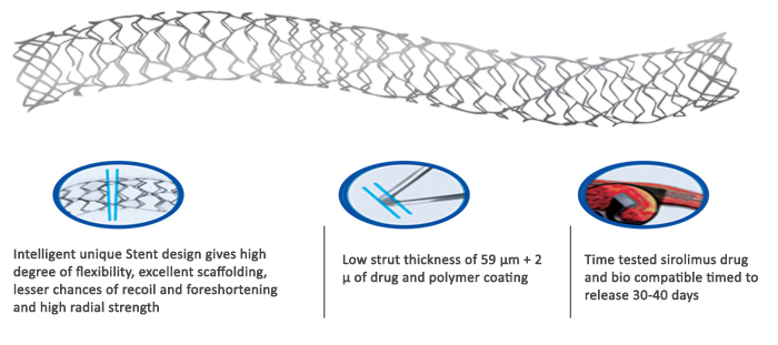 stent-2